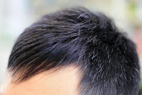 前髪だけの縮毛矯正