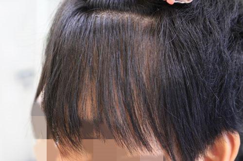 前髪の矯正後