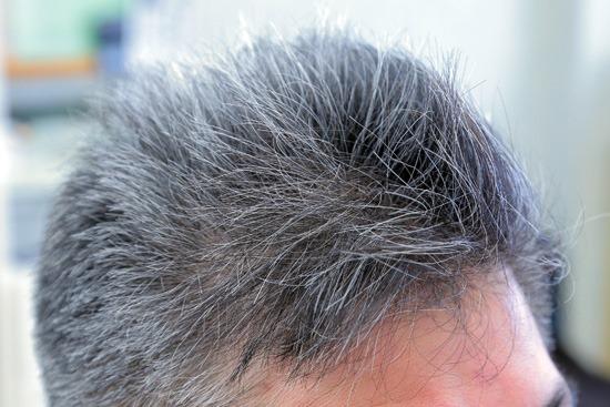 前髪の生え癖