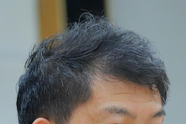 薄毛対応のカット