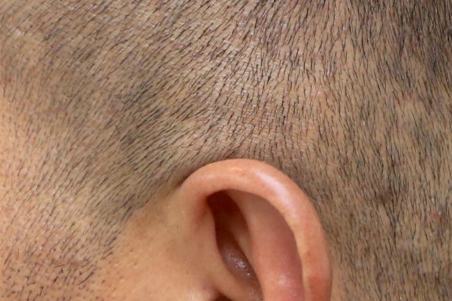 耳と髪が生えている位置の隙間
